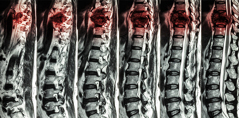 Understanding Different Types of Spinal Cord Injuries   The
